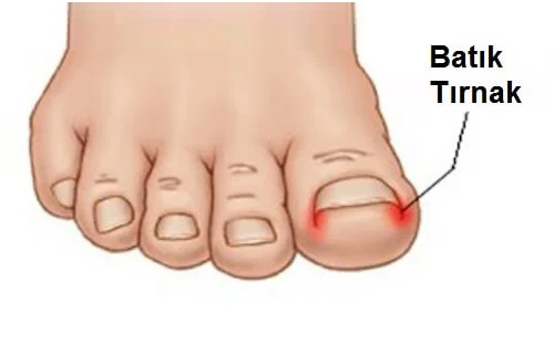 batık tırnak tırnak batması podolife istanbul ayak sağlığı merkezi
