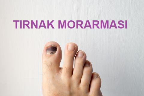 TIRNAK MORARMASI - Podolife Ayak Sağlığı