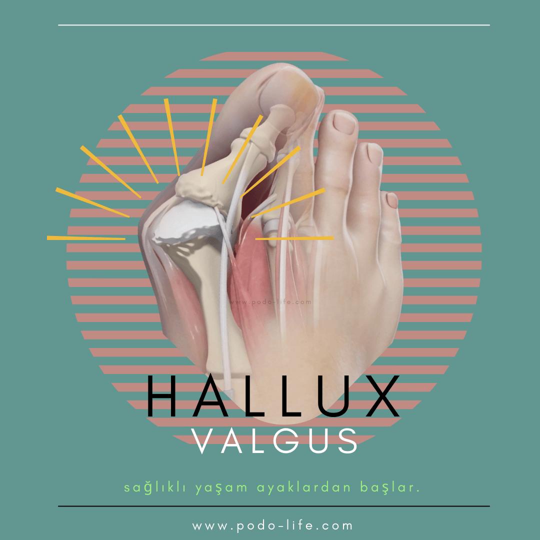 HALLUX VALGUS ( Kemik çıkması) nedir nasıl olur
